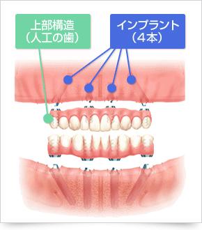 implant_img02